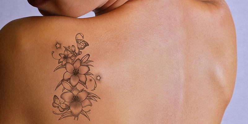 Αφαιρεση tattoo με laser