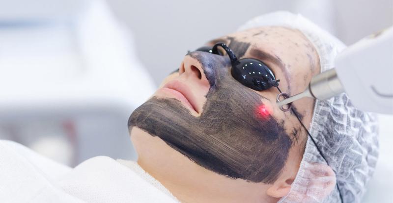 BLACK DOLL / Περιποίηση προσώπου laser με Άνθρακα